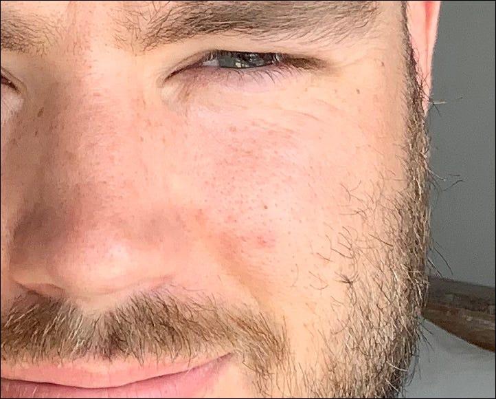 contraste en la piel